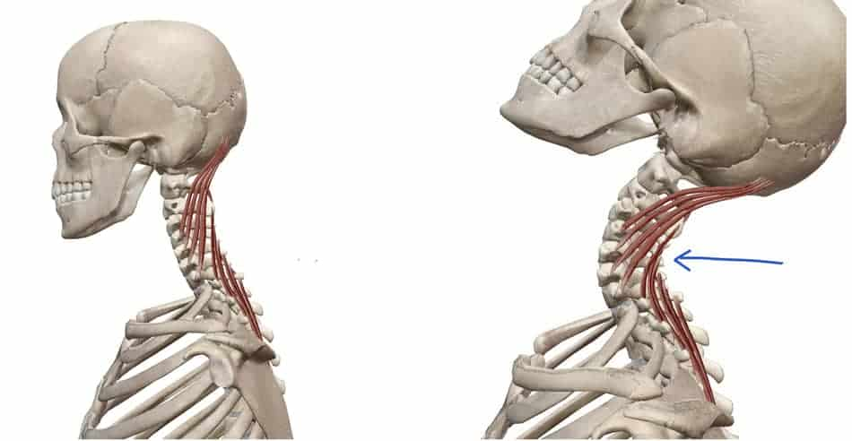 extension of the neck causing pain during kettlebell swing