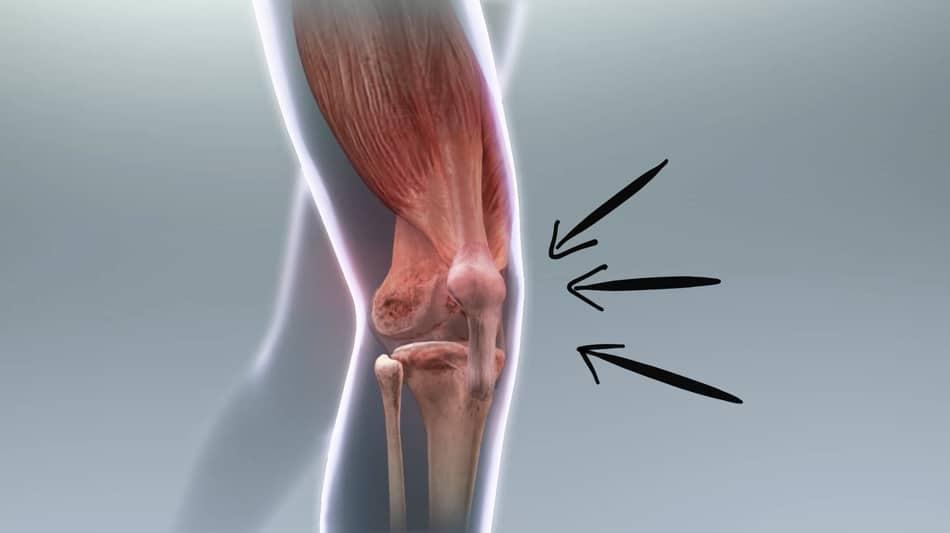 KB swings and knee pain